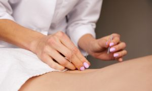 Acupuncture for Irritable Bowel Syndrome