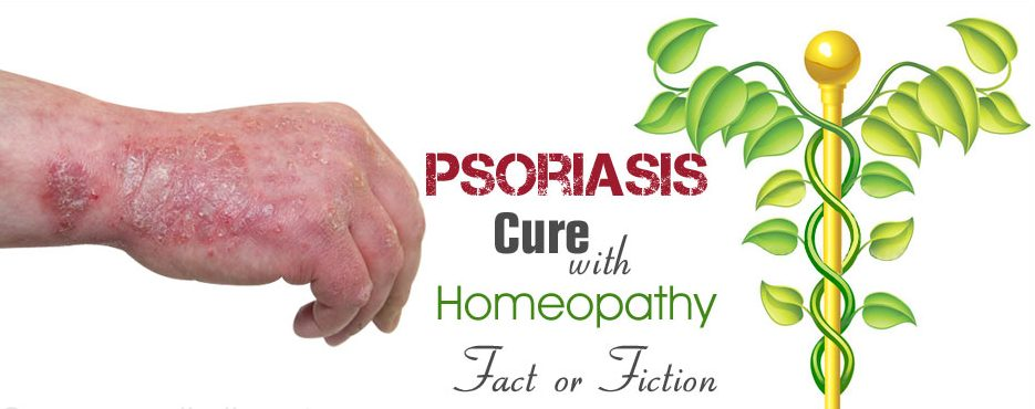 psoriasis-cure-with-homeopathy-amita-holistic-e1520306014523.jpg